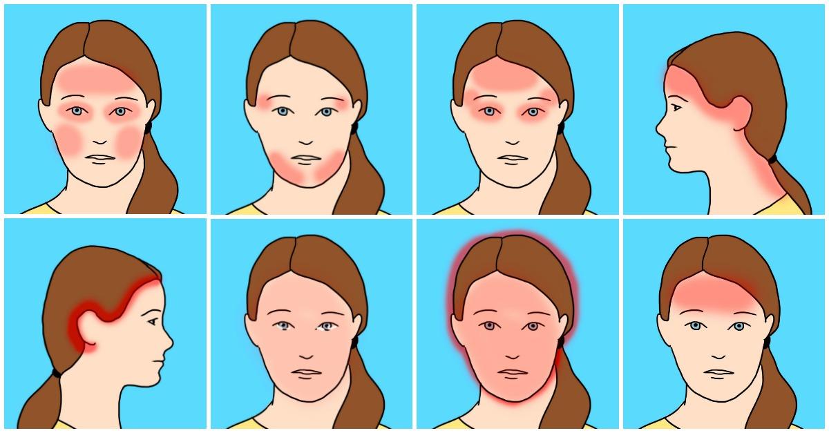 headache, migraine