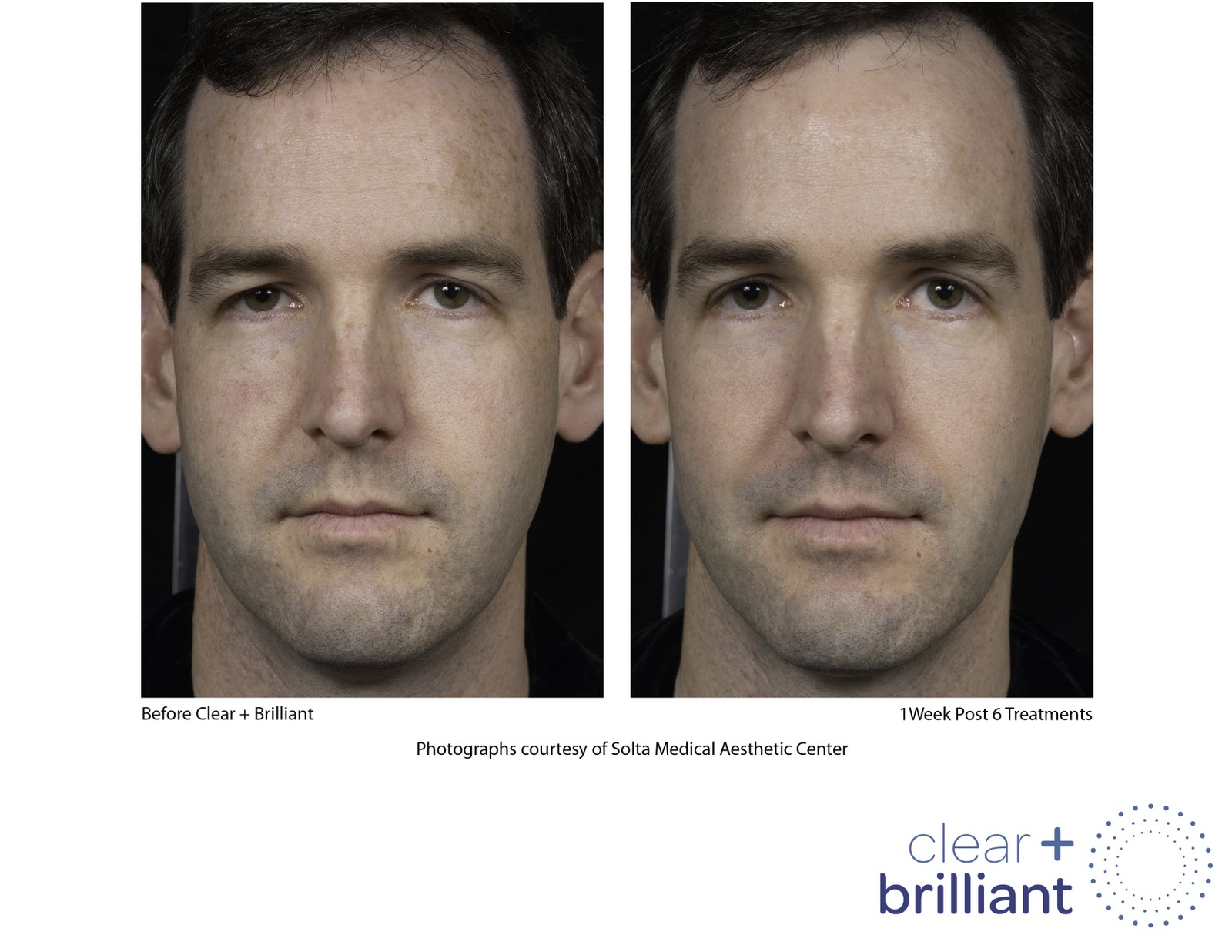 Concannon Plastic Surgery Clear Brilliant Laser At Concannon