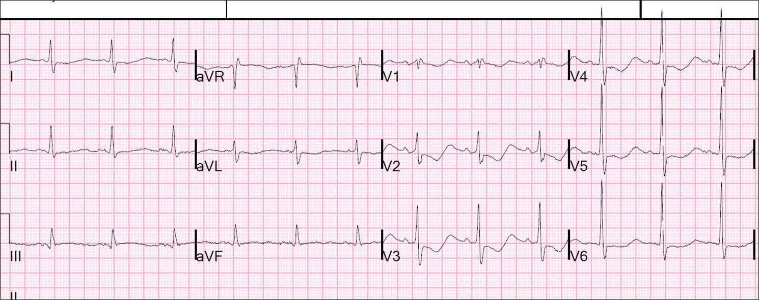 Dr  Smith's ECG Blog: October 2014
