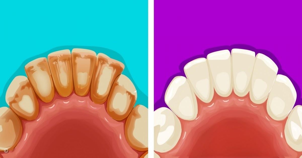 prendre soin de ses dents naturellement