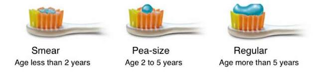 Ubat gigi kanak-kanak