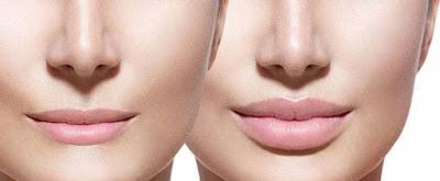 Cách chữa môi trề là thu gọn môi