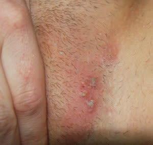kena infeksi jamur kulit di selangkangan atau sela paha apa obatnya