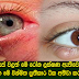 Your eyes are losing the symptoms ætivenavānam Here's a short course treatment to Surprise
