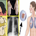 Dangerous Signs and Symptoms of Lung Cancer