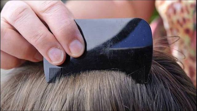 cara membasmi kutu rambut dengan baby oil