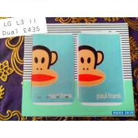 Contoh Skin Handphone    LG L3 Dual E435