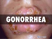 9 Hal yang Perlu Anda Lakukan Ketika Pengobatan Gonore secara Medis