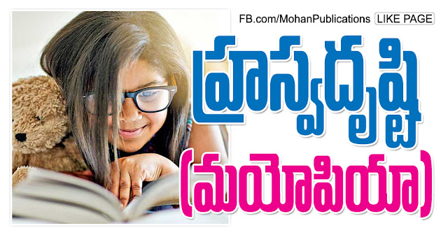 హ్రస్వదృష్టి మయోపియా Myopia EyeMyopia Eye Sight Eye Problems Pediatric eye problems