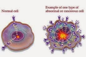 Obat tradisionla penyakit kanker darah - Cara ...