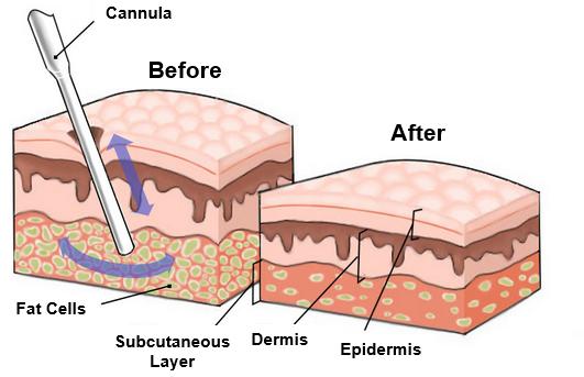 Successful Liposuction Surgery