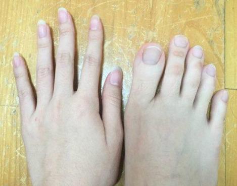 Mahasiswi Taiwan Guncangan Netizens Dengan Jari-jari Kaki Yang Panjang