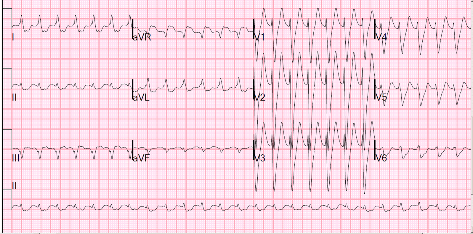 Dr Smith S Ecg Blog Several Wide Complex Rhythms In One Patient Test Yourself Will You See