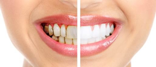 See Top Three Foods That Damage Your Teeth