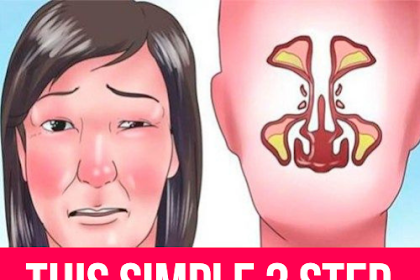 This Simple 3 Step Technique Can Clear Your Sinuses Immediately