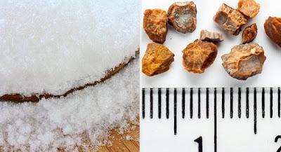 remèdes naturels pour expulser les pierres des reins
