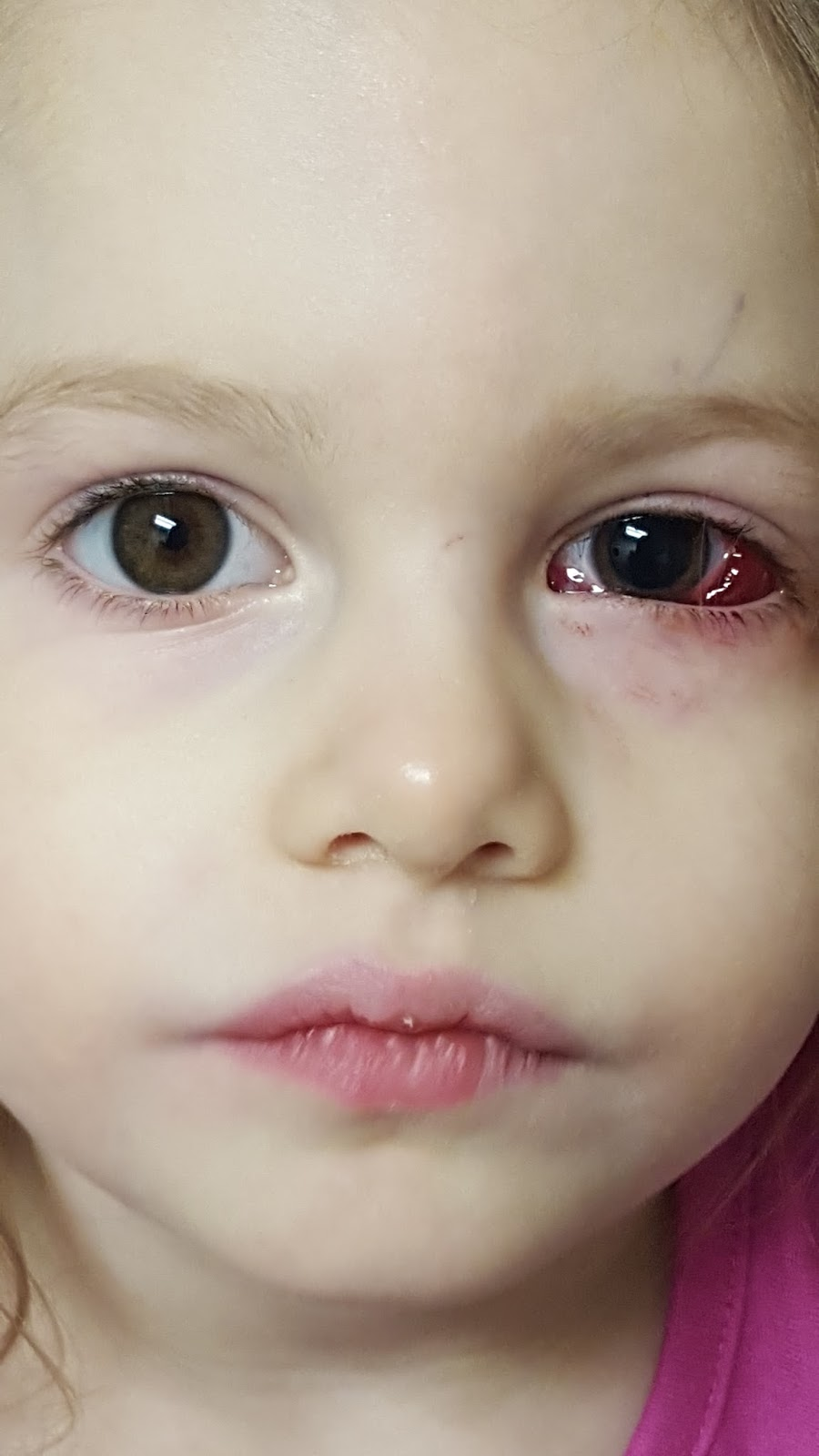 The Patty Cake Patch Strabismus Surgery