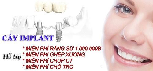 Giải Pháp Cấy Ghép Răng Nhanh -8