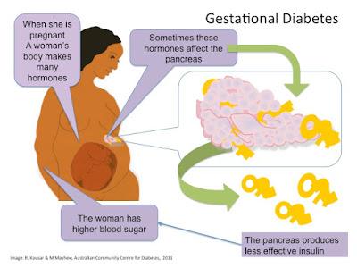 diabetes semasa mengandung