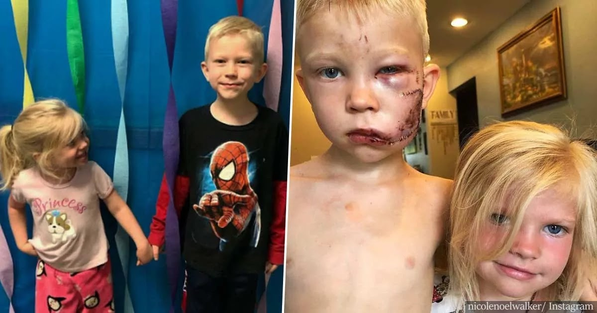 6-Year-Old Boy Saves His Sister From Dog Attack And Is Praised For His Heroism By Anne Hathaway, The Avengers Cast And More Of Hollywood's Biggest Stars