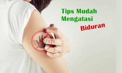 tips atasi biduran