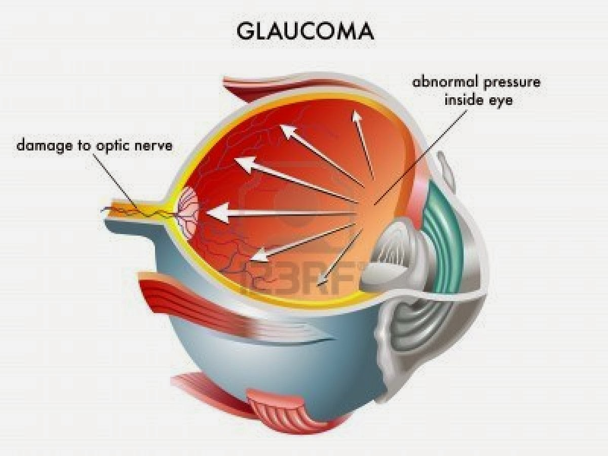 Early Increased Glaucoma Risk With Early Menopause