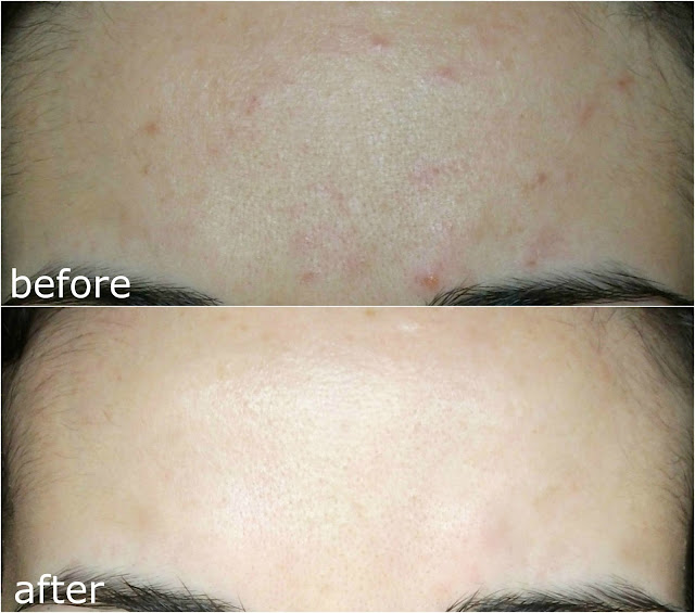 Before and after picture using CORSX Advanced Snail 96 Mucin Power Essence skin texture + review