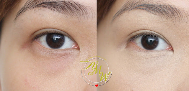 before and after photo of CLIO Kill Cover Pro Artist Liquid Concealer Review by Nikki Tiu of askmewhats.com