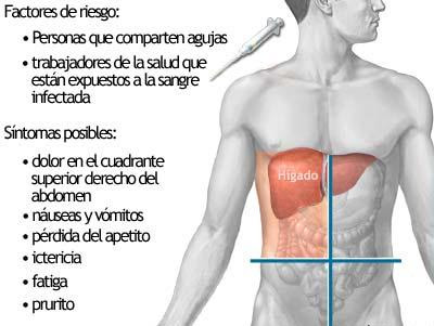 La Hepatitis C