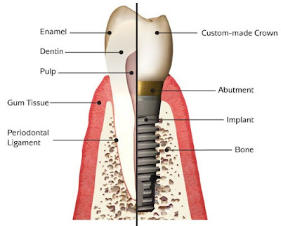 Dental Implant Treatment in Mississauga