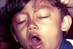 Gejala (Simtom) Punca Punca Serta Rawatan Penyakit Batuk Kokol