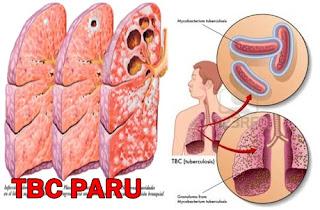 Obat Batuk TB paru di Ambon Maluku