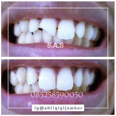 Foto hasil perbaikan restorasi tambal sambung gigi patah