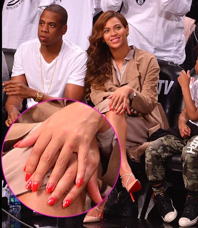 Beyonce Jay Z S Wedding Ring Tattoos No More Visible Photos
