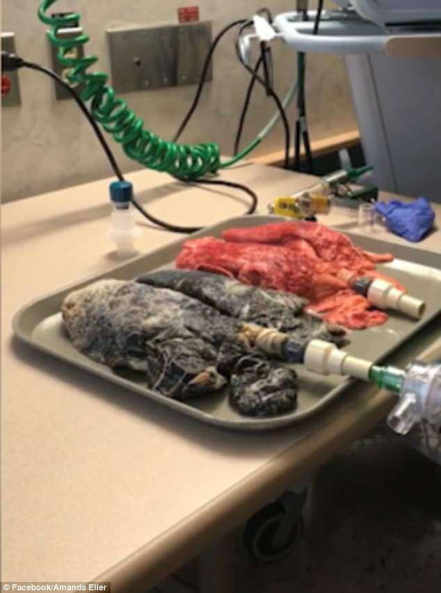 Terrifying Video Compares The Lungs of A Smoker And A Non-Smoker