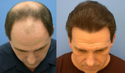 things-to-consider-before-getting-hair-transplant