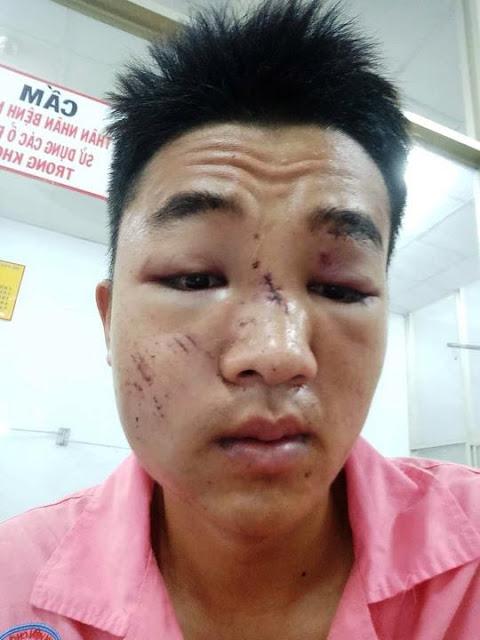 Anh Thạnh lúc nằm bệnh viện Chợ Rẫy cho rằng bị CSGT đánh