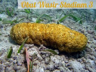 Obat Wasir Stadium 3