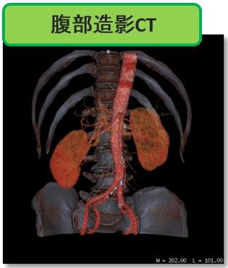 『CT検査』検査の概要とながれについて解説