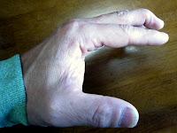 マレット変形した左手の中指