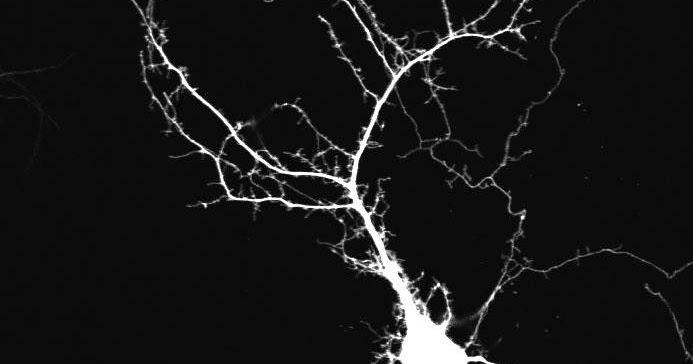 spontaneous activity shapes neuron development minds of. Black Bedroom Furniture Sets. Home Design Ideas
