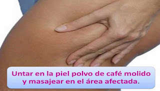 Remedios Sencillos Para La Celulitisr