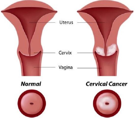 Kanker Serviks : Tanda-tanda, Penyebabnya, dan Mencegah Kanker Serviks