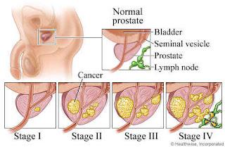 10 Cara Alami Mencegah Kanker Prostat, Gejala dan Cara Mencegah Kanker Prostat, 7 Makanan Pencegah Kanker Prostat yang Alami dan Baik Untuk