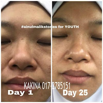 Testimony Youth SkinCare