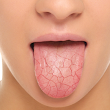 How older adults can handle dry mouth and taste problems