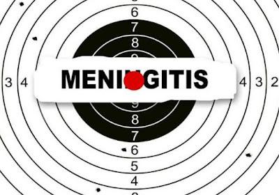 5 Fakta Mengenai Meningitis