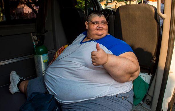 Operan al obeso más grande del mundo