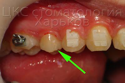 Вид зуба после отклеивания брекета по вине врача