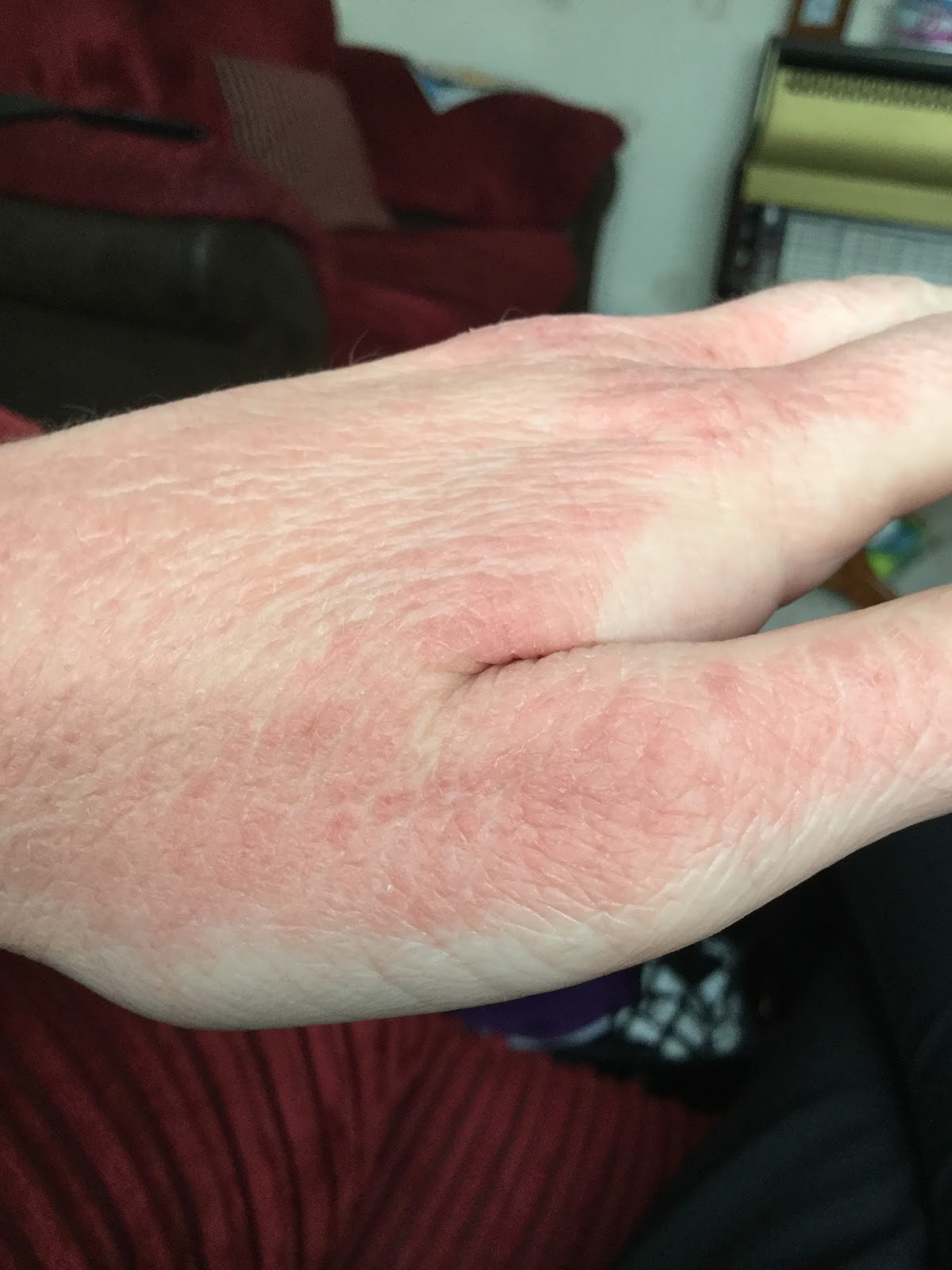 What's It's Like Living With Emetophobia (A Fear Of Being Sick) OCD anxiety hands over washed sore red